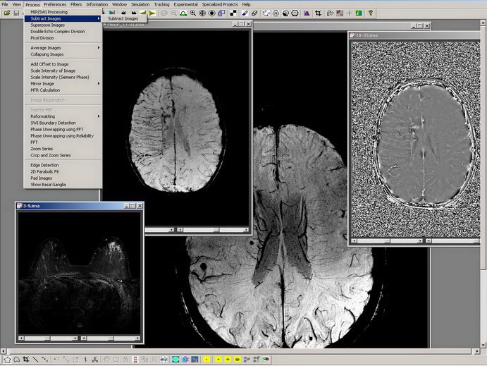 Download A powerful software for MRI DICOM data post-processing